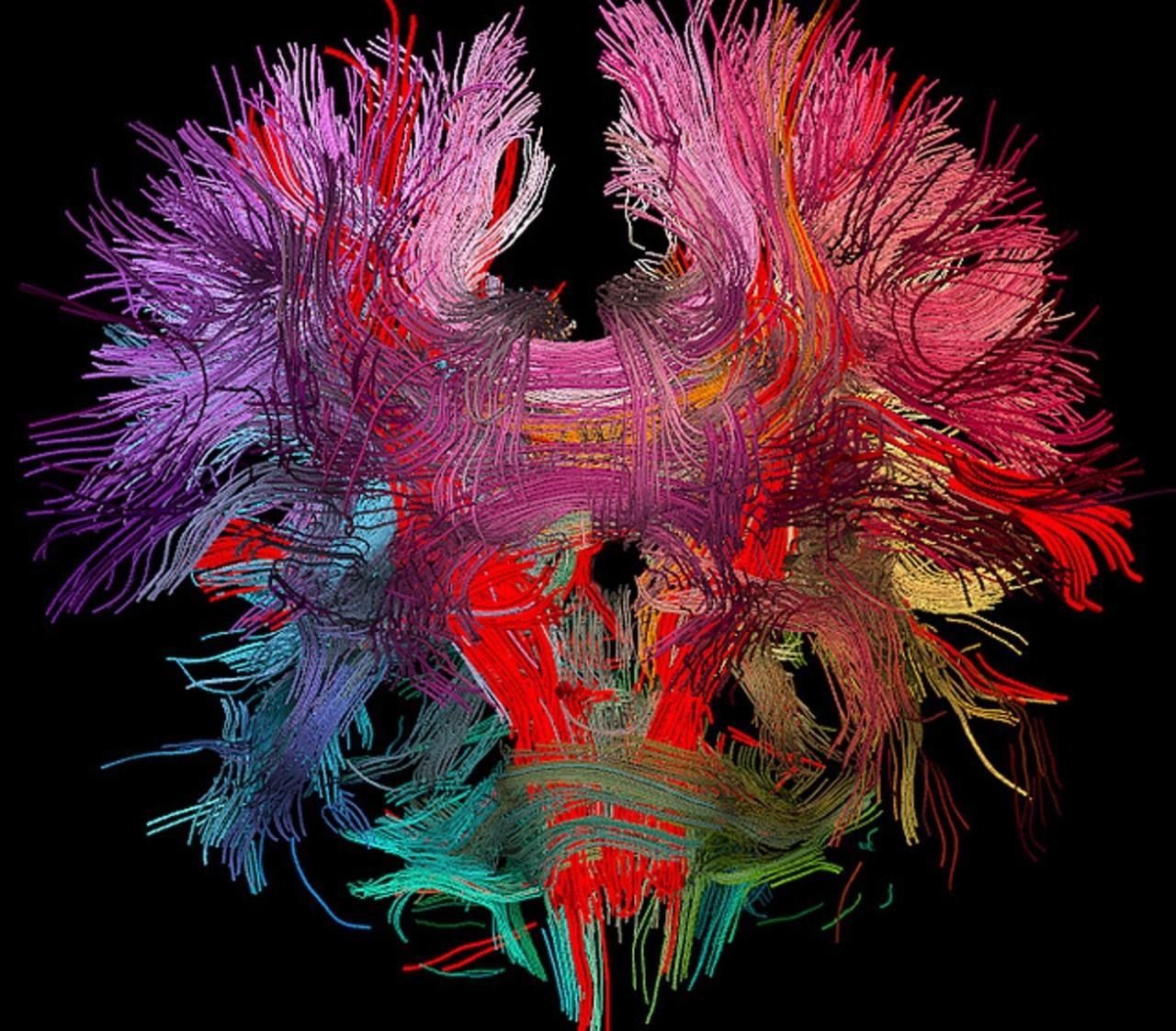 我们死后大脑会怎么样呢?