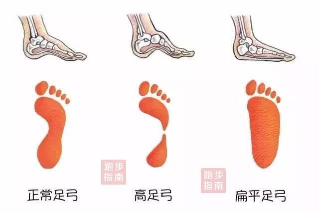 答疑 | 如何挑选适合自己的跑鞋?