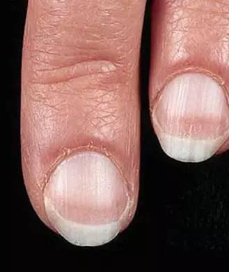 从指甲能看出哪些健康问题?